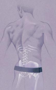 ceinture serola sur squelette